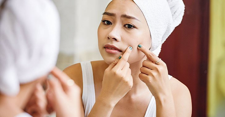 girl-popping-pimple-in-mirror